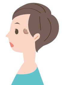 脂漏性角化症